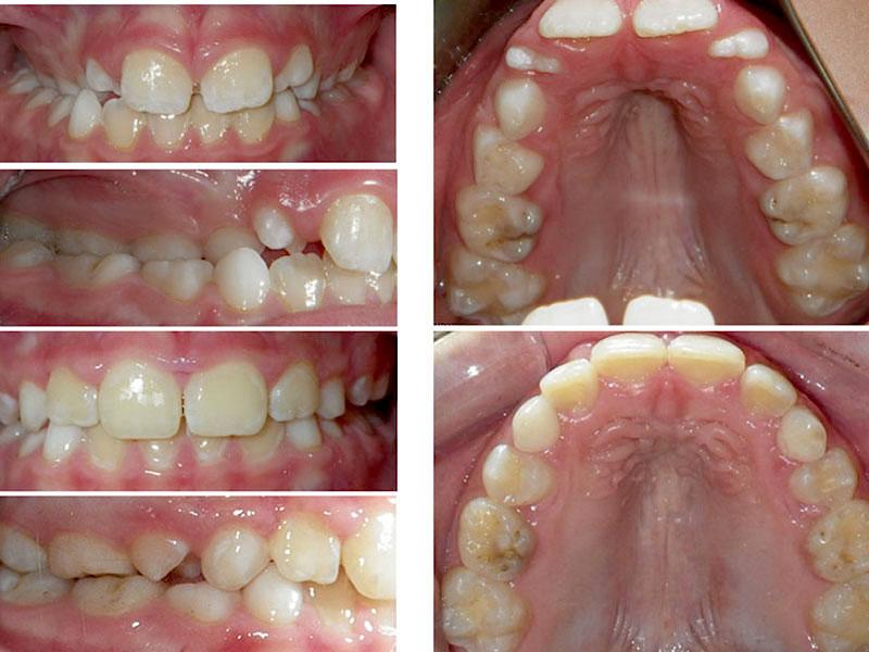 Sleep apnea for kids - Erik Swanson Orthodontics | Los Gatos CA