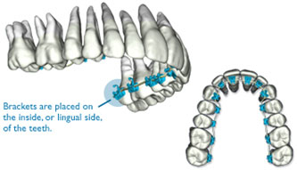 SureSmile QT Lingual Braces teeth models